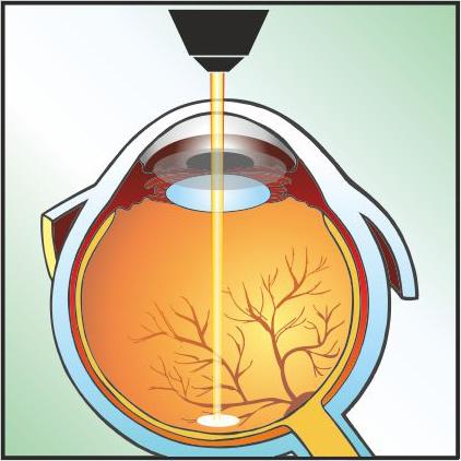 Laser Retina